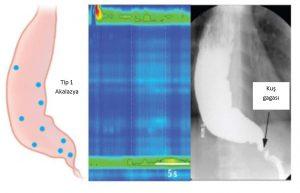özofagus mide grafisi 2